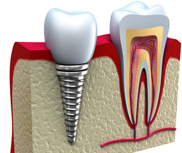 dental implants dentist in Conyers
